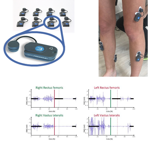 GAIT LAB Analisi del movimento Orthesys