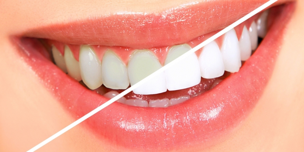 sbiancamento dentale - Marzio Lenzi Milano